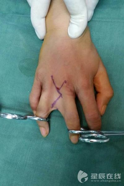 怪病手掌畸形 手指短小像 鸭掌  指外,其它四根手指都非常短小,指间